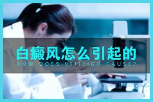 白殿风诊断的标准-白斑的初期症状是什么样